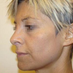 Quanto costa rifarsi il naso rinoplastica costo for Quanto costa il pex